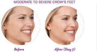 Botox-Cosmetic-img-21