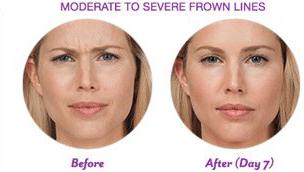 Botox-Cosmetic-img-22