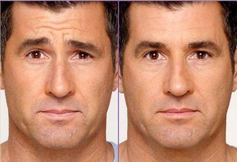 Botox-Cosmetic-img-3