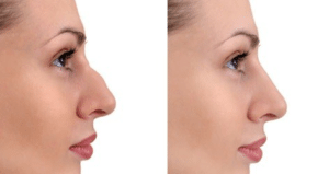 Non-Surgical Nose Shaping | Dr WW Med Spa & Laser Center